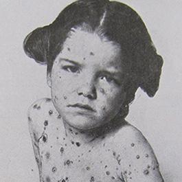 chichen pox in ancient world